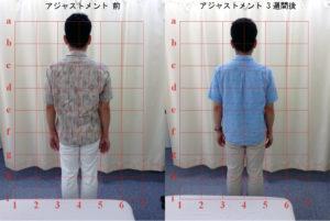 藤井カイロプラクティック 施術前後の比較画像